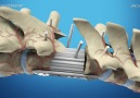 3D bone printing for the spine