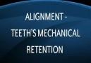 Deflex Protez için Dişlerin Hazırlanması ve Retansiyon İ