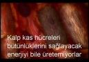 miyokard enfarktüsü- kalp krizi