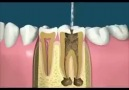 Process of Root Canal!