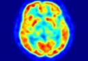 Stem-cell based stroke treatment repairs damaged brain tissue.
