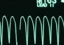 Takipçimizden gelen güzel anlamli video