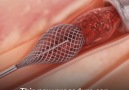 This amazing new procedure can remove blood clots entirely